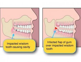 wisdom teeth cartoon