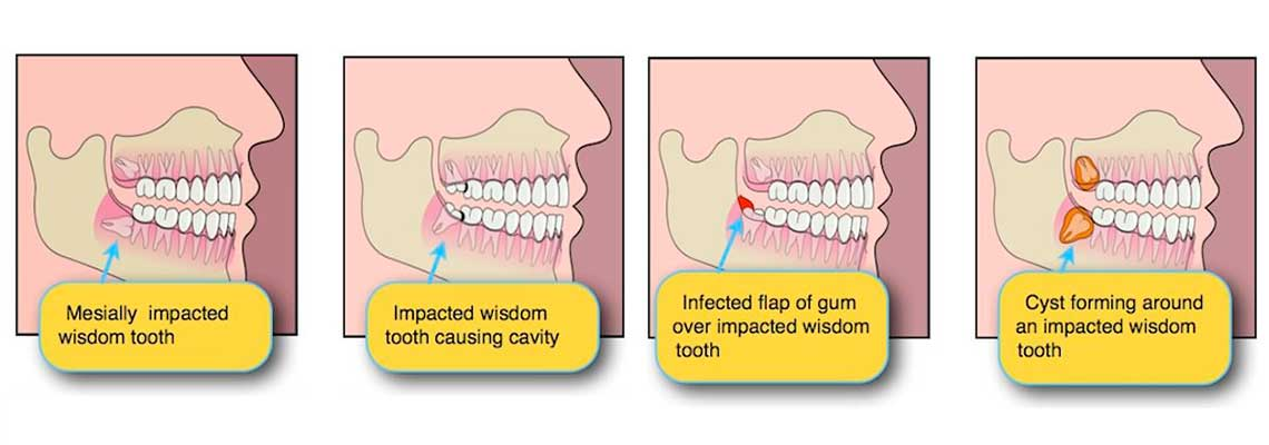 Do I Need To Remove My Wisdom Tooth? - South Perth Dental ...