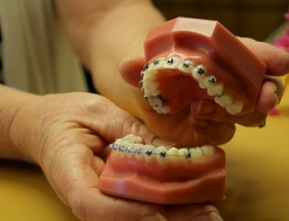 orthodontic bracket