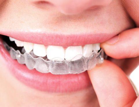 invisalign, teeth, dental