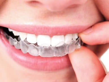 invisalign, teeth, dental